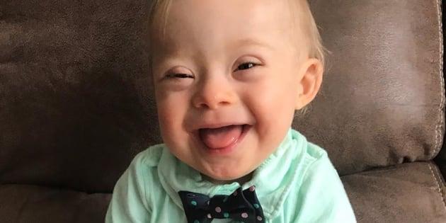 Ce bébé atteint de trisomie devient l'égérie d'une célèbre marque de petits pots, une première