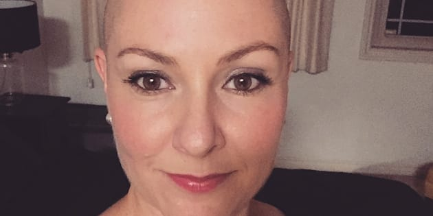 """Although my 'dating experiment' did not result in finding 'the one', I learnt to love myself again... It helped me come to peace with my Alopecia."""
