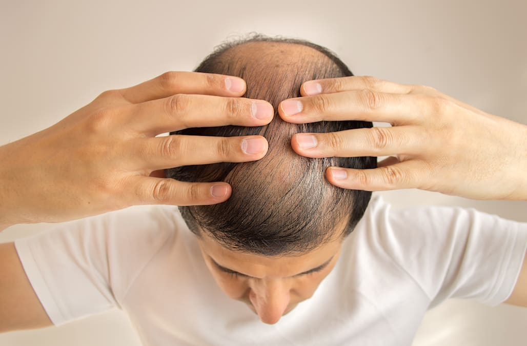 The Only Things That Actually Cure Baldness According To Science