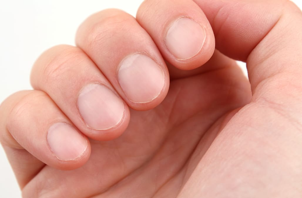 Here\'s what those white marks on your nails say about your health ...