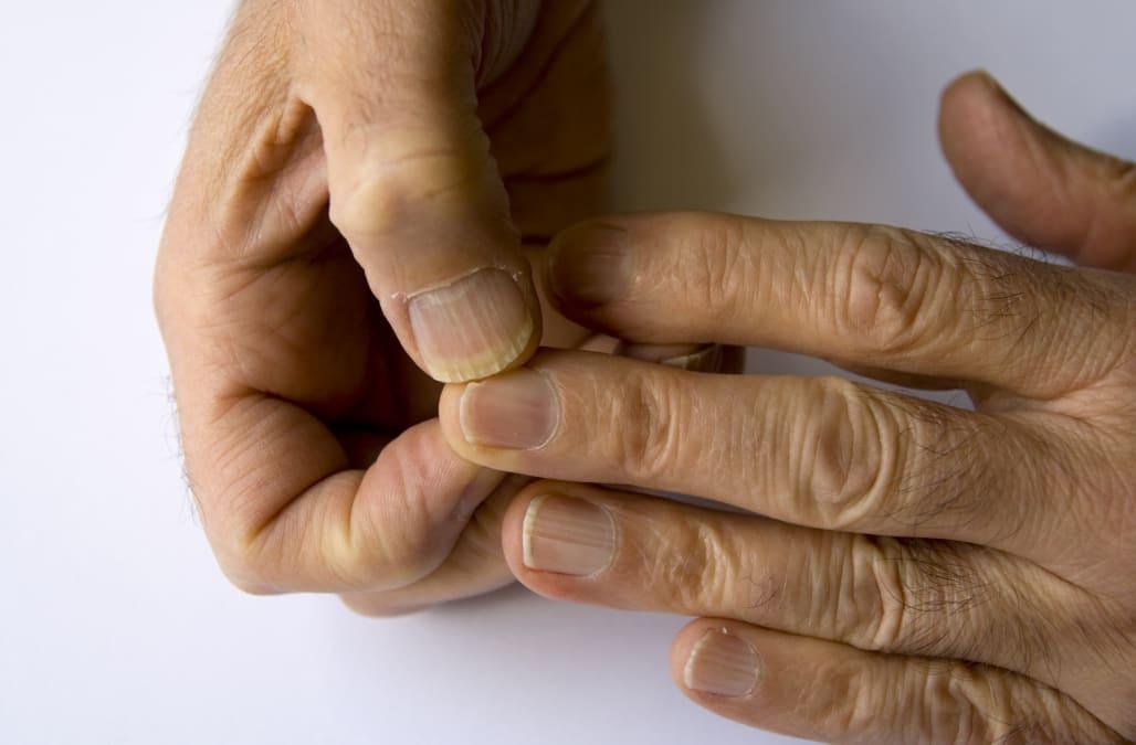 Dark boy nails white a hole