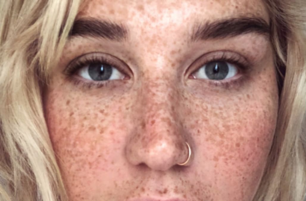 Kesha Frees The Freckle And Goes Without Makeup For A Fresh Start To - Kesha-no-makeup