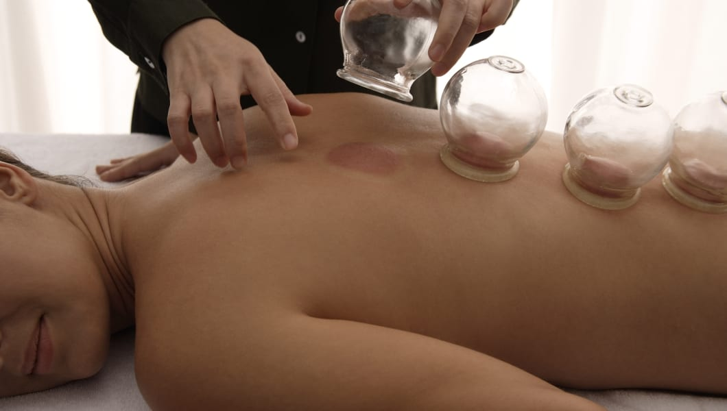 therapist removing cups from suction treatment