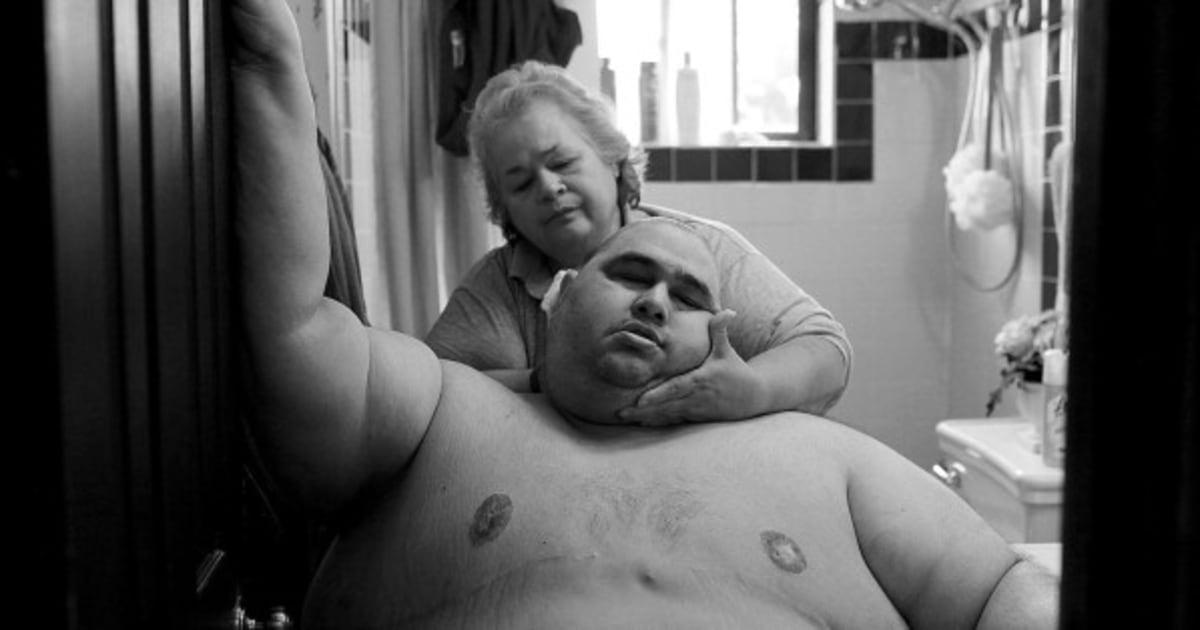 Fotos de cortar o coração mostram o drama da obesidade vivido por uma família