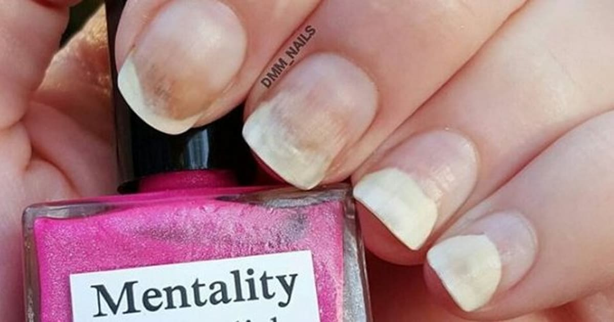 Mentality Nail Polish Under Fire For Ruining People\'s Nails