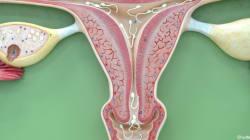 Cancer de l'utérus : le vaccin avancé à l'âge de 11