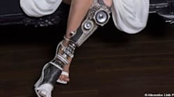 D'incroyables prothèses