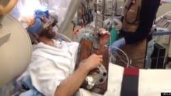 「意識を保った脳外科手術」をTwitterで動画ライブ中継:UCLA