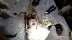 Gettato nel water, un neonato cinese resta vivo nello scarico. È salvo (FOTO,