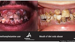 Is the Meth-Mouth/Diet-Soda Study Really