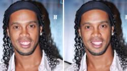 Ronaldinho s'est fait refaire les