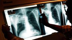 Tuberculosis Confirmed At GTA