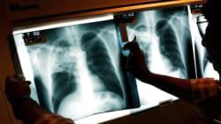 Tuberculosis Confirmed At GTA