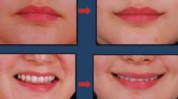 Le sourire du Joker, l'horrible chirurgie esthétique en vogue?