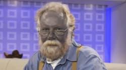「銀サプリ」で全身が青くなった男性、62歳で病死