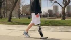 Cet homme marche avec une prothèse contrôlée par la