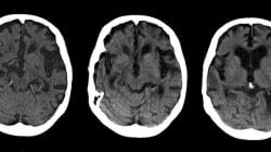 Alzheimer: onze nouveaux gènes