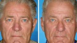 喫煙すると「顔の老化」が進む証拠写真