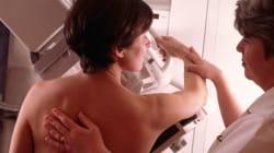 Mammographie: il est temps de mettre les femmes au courant des faits - Dr Charles