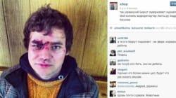 Les manifestants ukrainiens diffusent la photo d'un journaliste battu par la