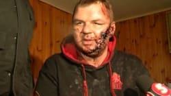 Un opposant ukrainien enlevé et torturé risque d'être