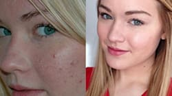 Stunning Before-And-After Acne