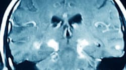 What You May Not Know About Parkinson's