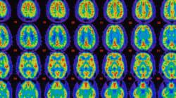 Lutte contre l'Alzheimer: de Montréal à