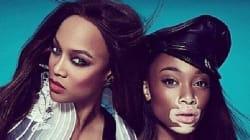 Top Model Contestant With Vitiligo Is