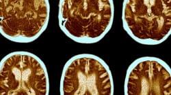 Maladies neurodégénératives: la profonde fragilisation de la perception de