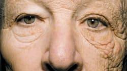 Ecco come il sole invecchia la pelle