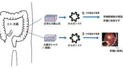 体外で大腸がん再現、腺腫のリスク実証