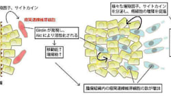 がん進展促す線維芽細胞の仕組み解明