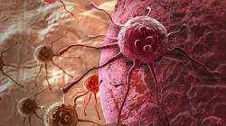 Cancer Cases In Canada To Rise 40 Per Cent By