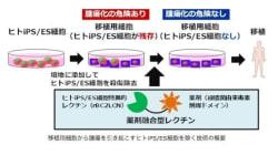 iPS細胞用いた再生医療の障壁除去する技術開発