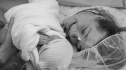 帝王切開で出産した母親についての3つの真実
