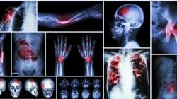 TIRINHA: Os órgãos mais cruéis do corpo