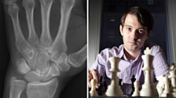 'Most Hated' Pharma Boss Says He Fractured His Wrist Punching A