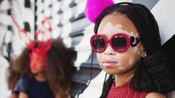 Atteinte du vitiligo, April Star souhaite redéfinir la