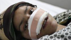 夫に鼻を切り取られたアフガニスタンの女性が、解放されて手に入れたいものとは【ルポ】