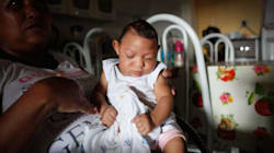 This Is What The Rare Birth Defect Linked To The Zika Virus