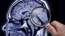 La minute positive: Espoir pour la maladie d'Alzheimer