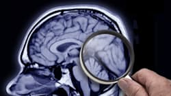 Alzheimer's Disease Might Actually Be Declining, Not