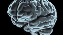 Scongelato per la prima volta con successo il cervello di un