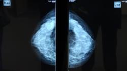 Asportato un cancro al seno di 15 chili. intervento da record al