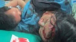 La mamma ferita continua ad allattare il figlio sul lettino del pronto
