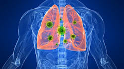 This Is What Happens To Your Lungs When You Get The