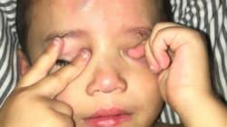 La belle idée d'une maman pour dédramatiser la blessure de son fils
