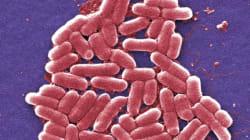 Donna colpita da super-batterio, resiste anche agli antibiotici più
