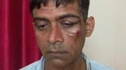 Cabbie Allegedly Thrashed By Six Africans For Refusing To Allow Extra